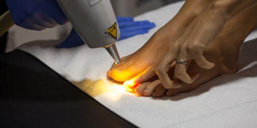 Uklanjanje gljivica na noktima laserom